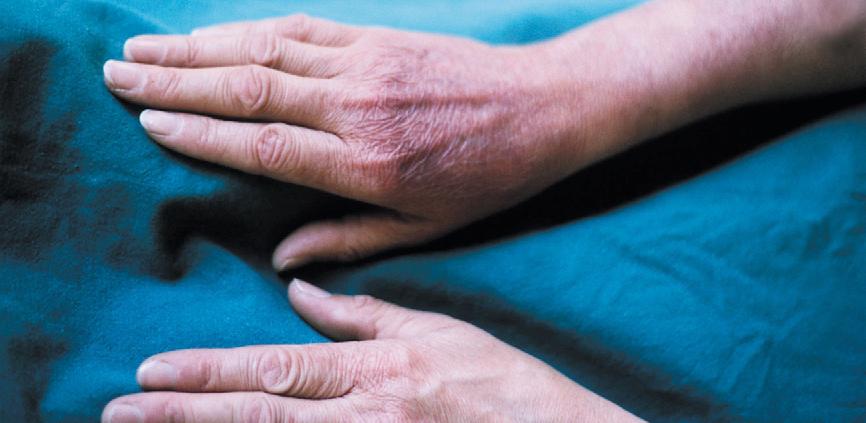Objawy boreliozy: atopowe zapalenie skóry (ACA)